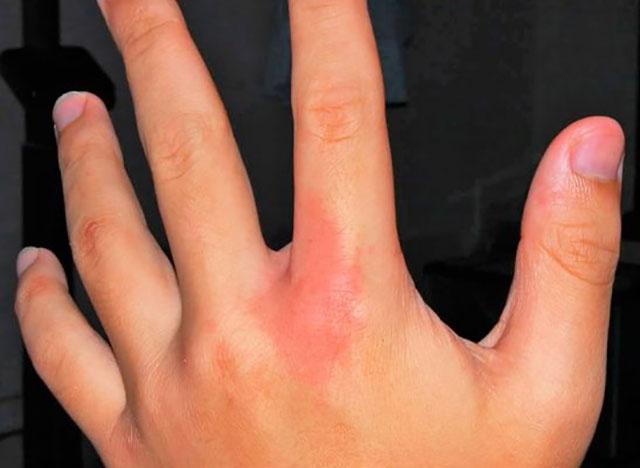 Как выглядит укус сколопендры